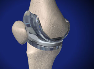 Knee specialist approach to total knee replacement